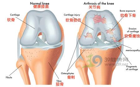 跑步膝盖疼怎么办 如何预防运动膝盖损伤 运动减肥 第1张