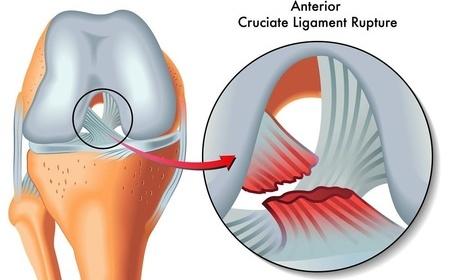 跑步膝盖疼怎么办 如何预防运动膝盖损伤 运动减肥 第2张
