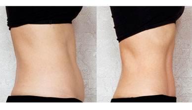 快速瘦腰 捆脚趾操方法大公开, 快速瘦腰不麻烦 瘦腰
